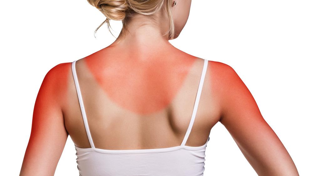 رأي طبيب: أفضل طريقة لعلاج حروق الشمس