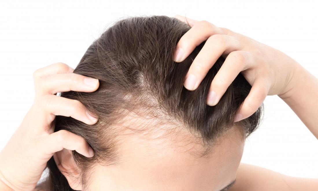 جربنا لكِ خلطات لملء فراغات الشعر.. بعضها مفيدة جداً!