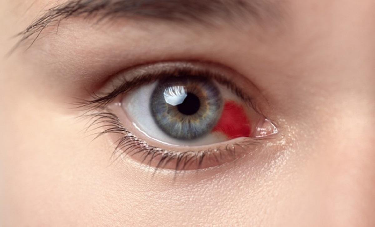 اسباب نزيف العين