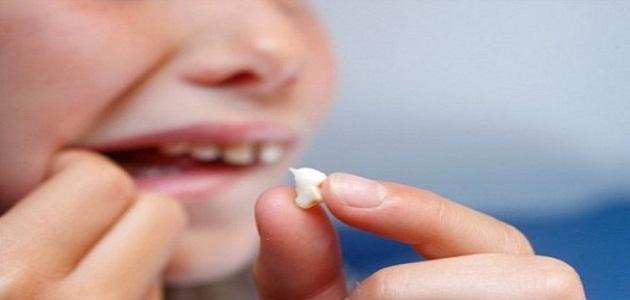 تفسير رؤية تسوس الاسنان في المنام